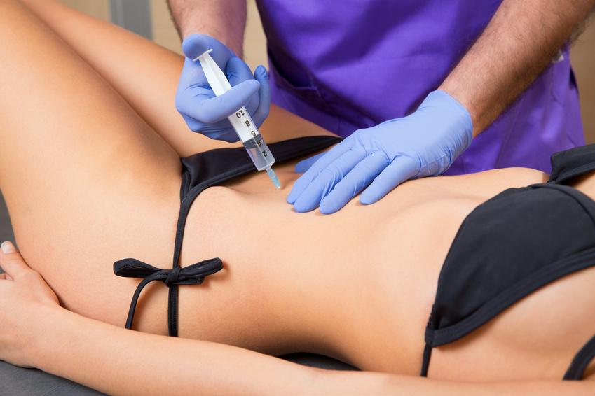 Mezo terapija tela