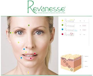 revanesse1
